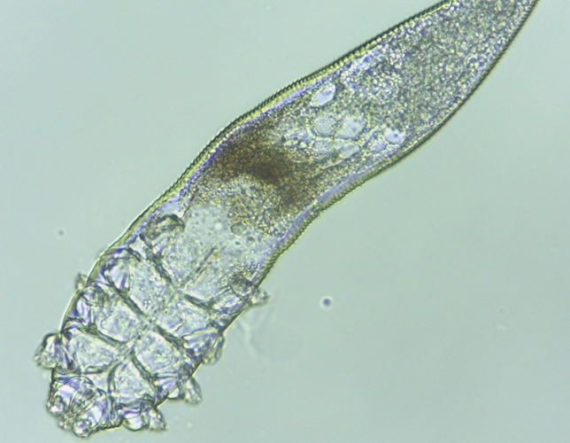 One of the Demodex specimens we collected (Photo credit: Dan Fergus)