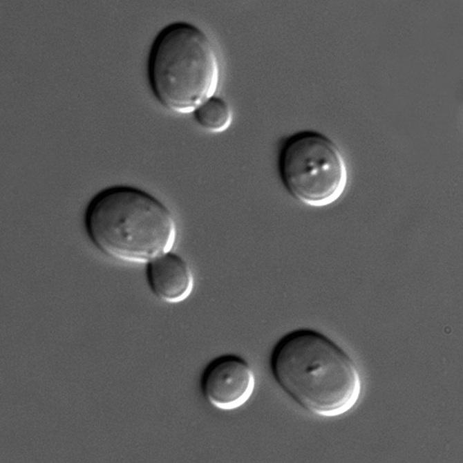 S_cerevisiae_under_DIC_microscopy_670